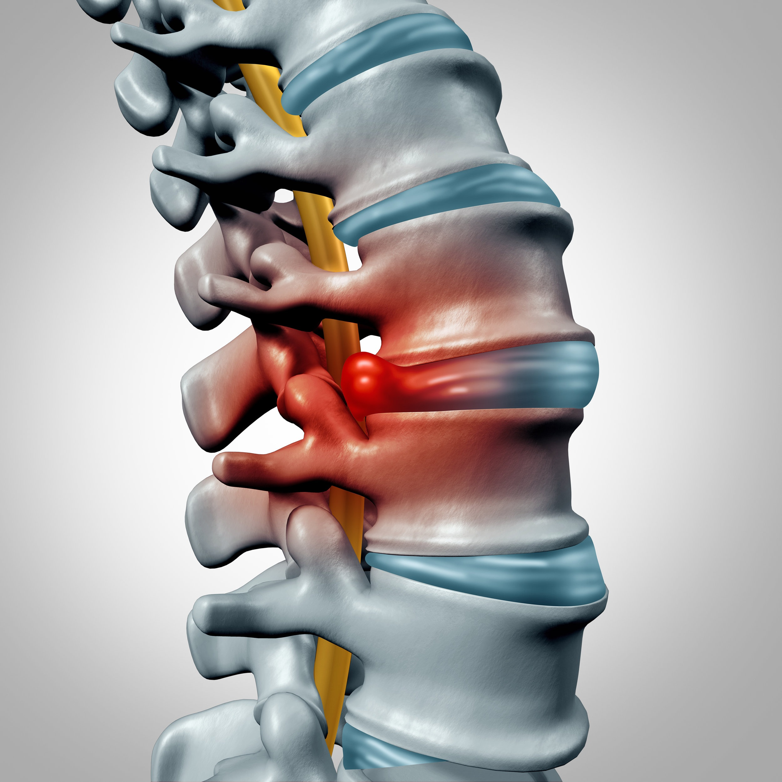 Spinal Decompression - Innovative technology to alleviate disc and back pain