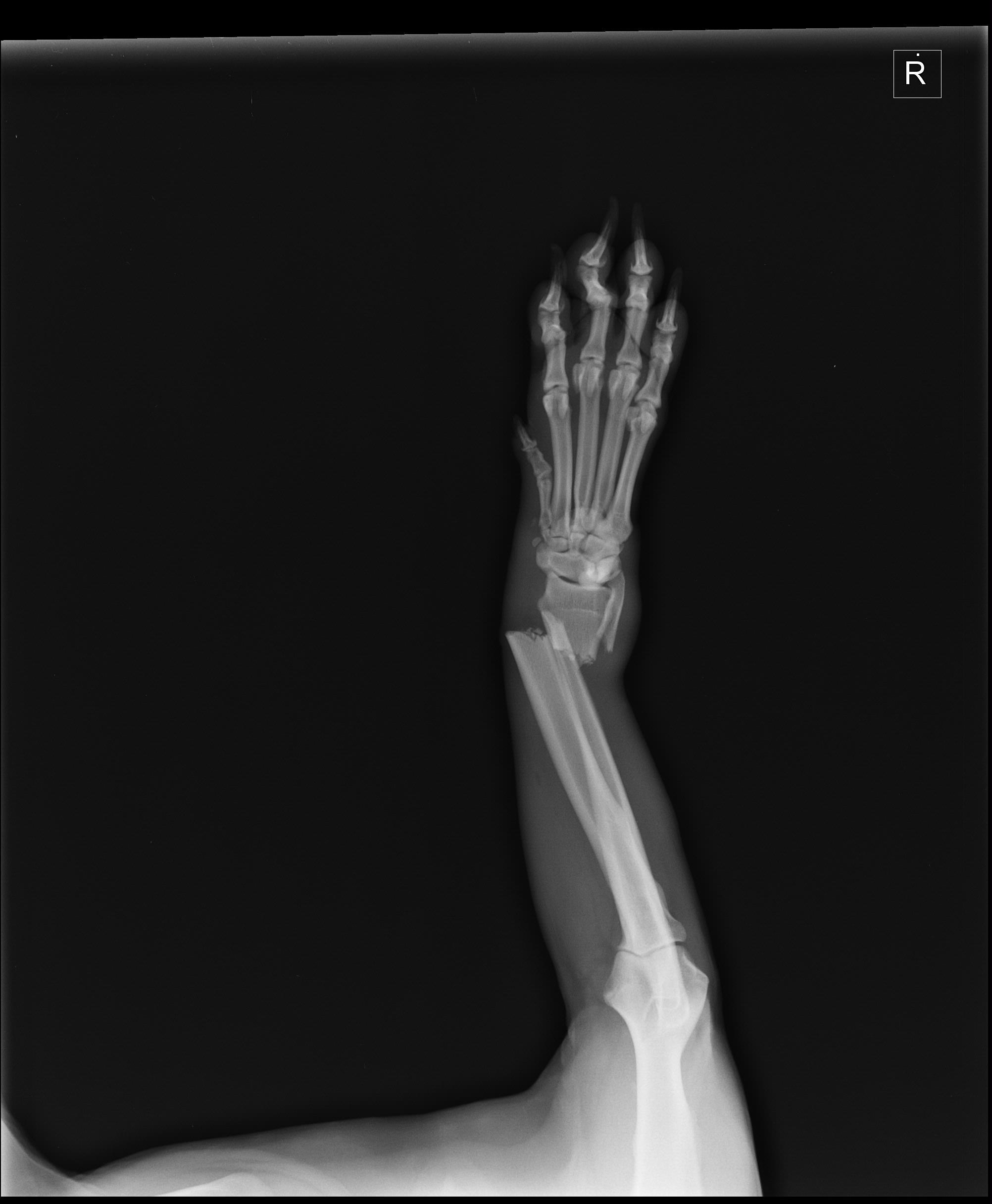 X-ray of Justin's leg -