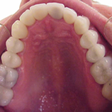 All ceramic crowns... Beautiful.