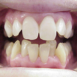 Micro-abrasion and whiting on upper teeth.