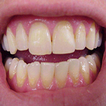 Bonded tooth colored fillings.