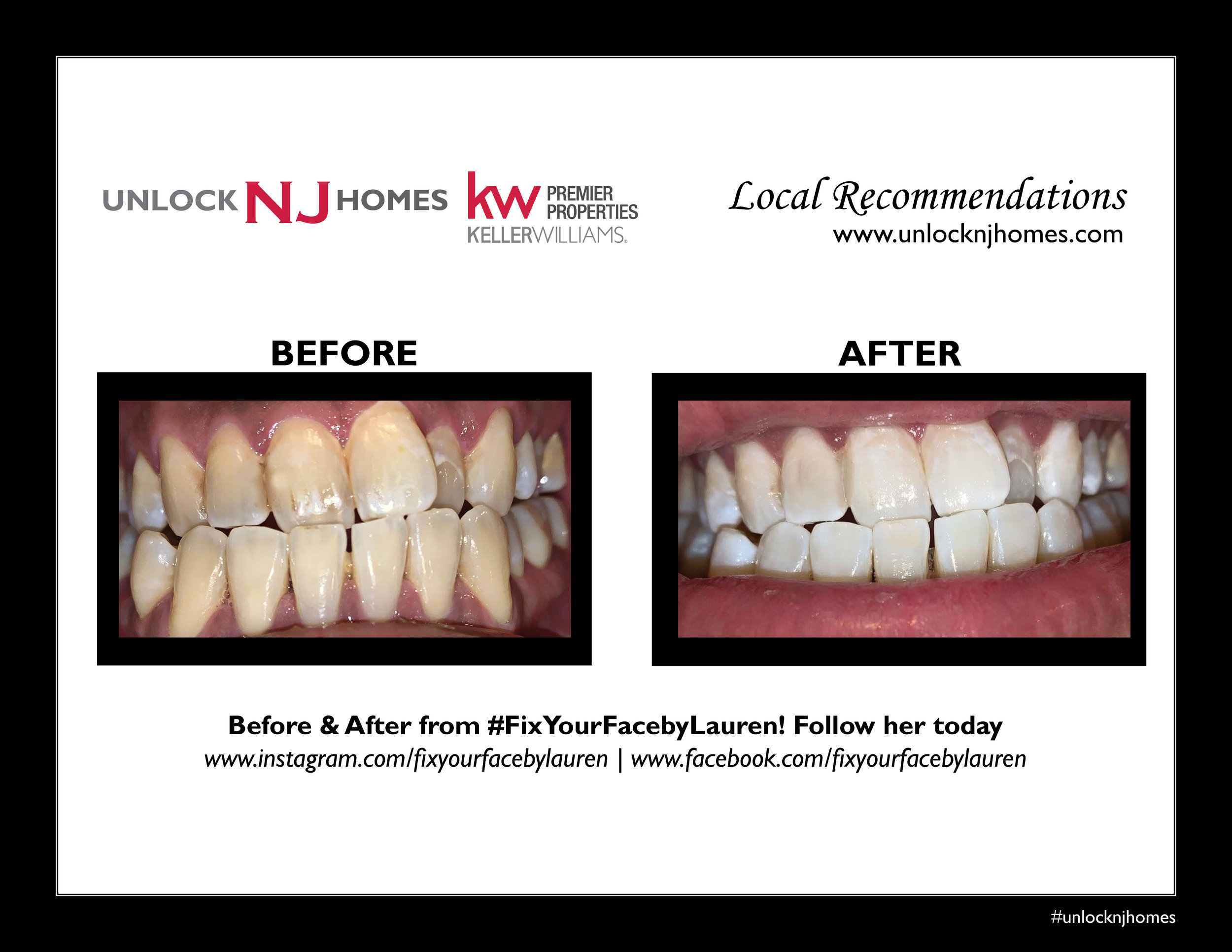 "Fix Your Face by Lauren - ""The treatment was extremely quick and the results are immaculate."""