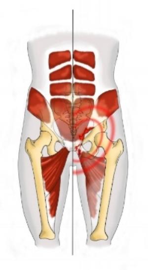 Fig 2 : muscles adducteurs et abdominaux