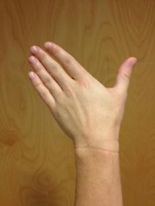 Ulnar Deviation (left hand)