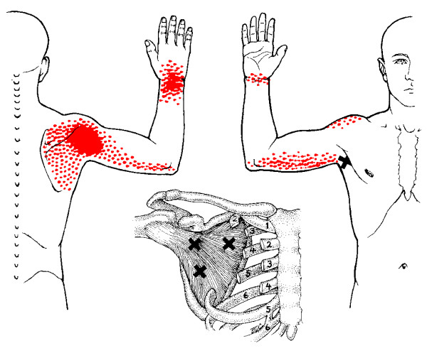 subscap referred pain.png