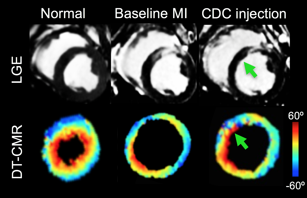 Myocardial Regeneration Therapy Evaluation with DT-CMR