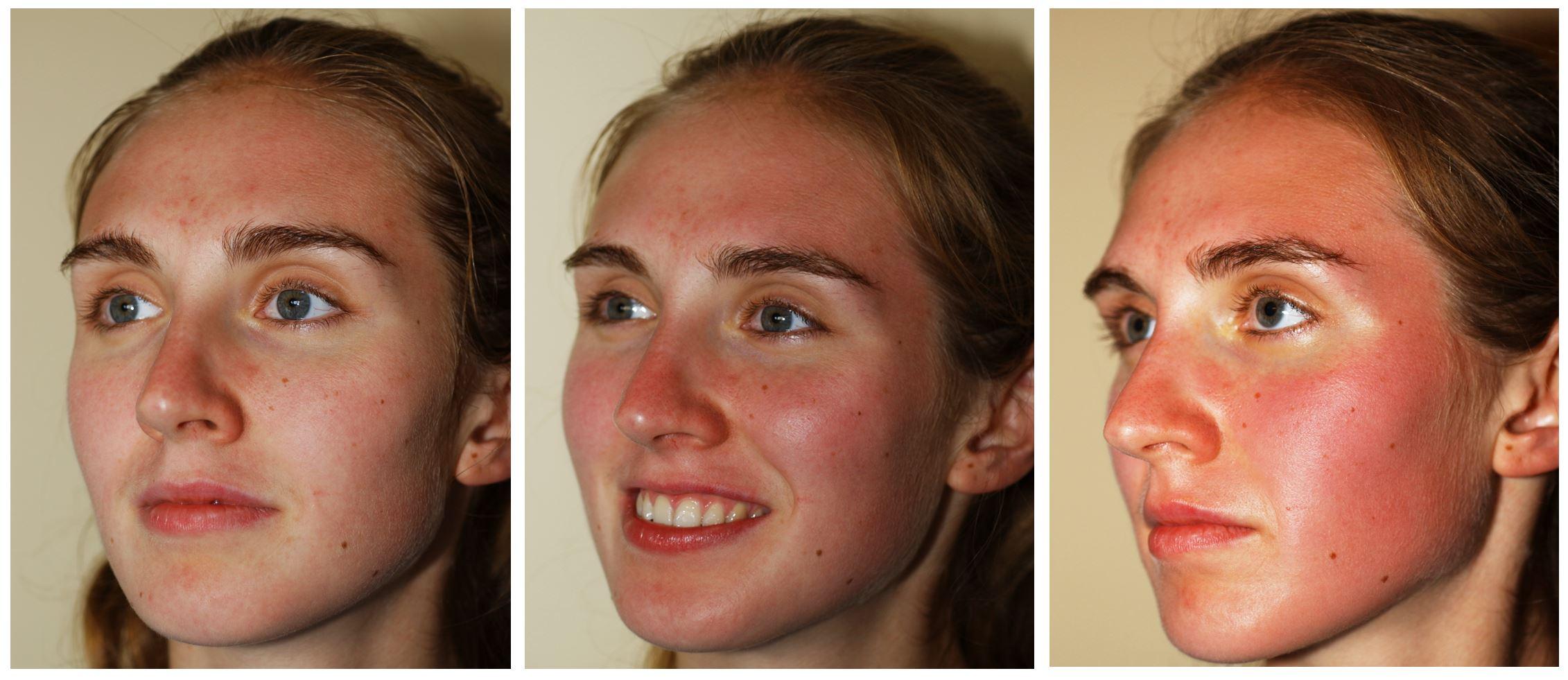 Villani Treatment - 15 minutes after mild, medium, and strong