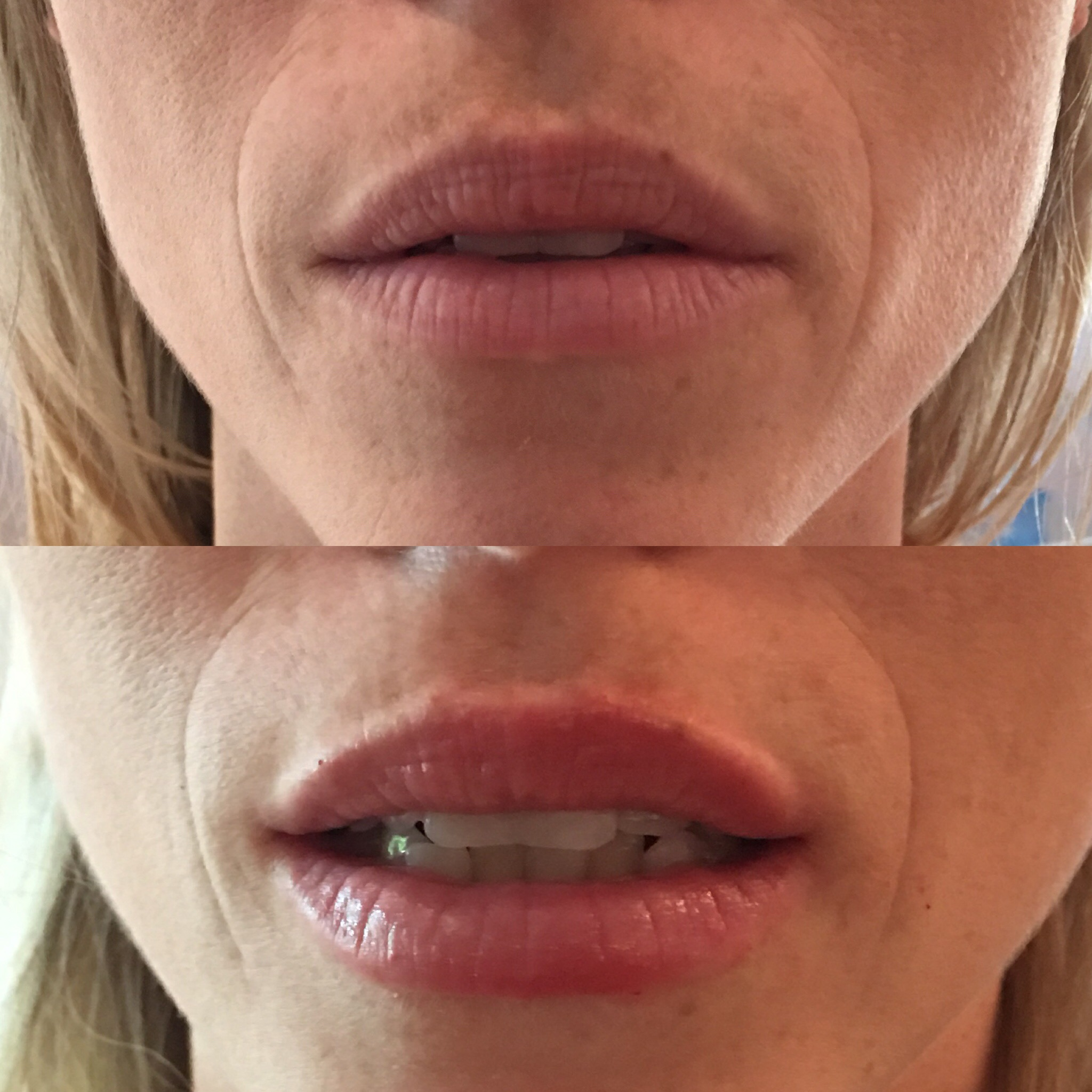 0.5ml Juvederm Smile