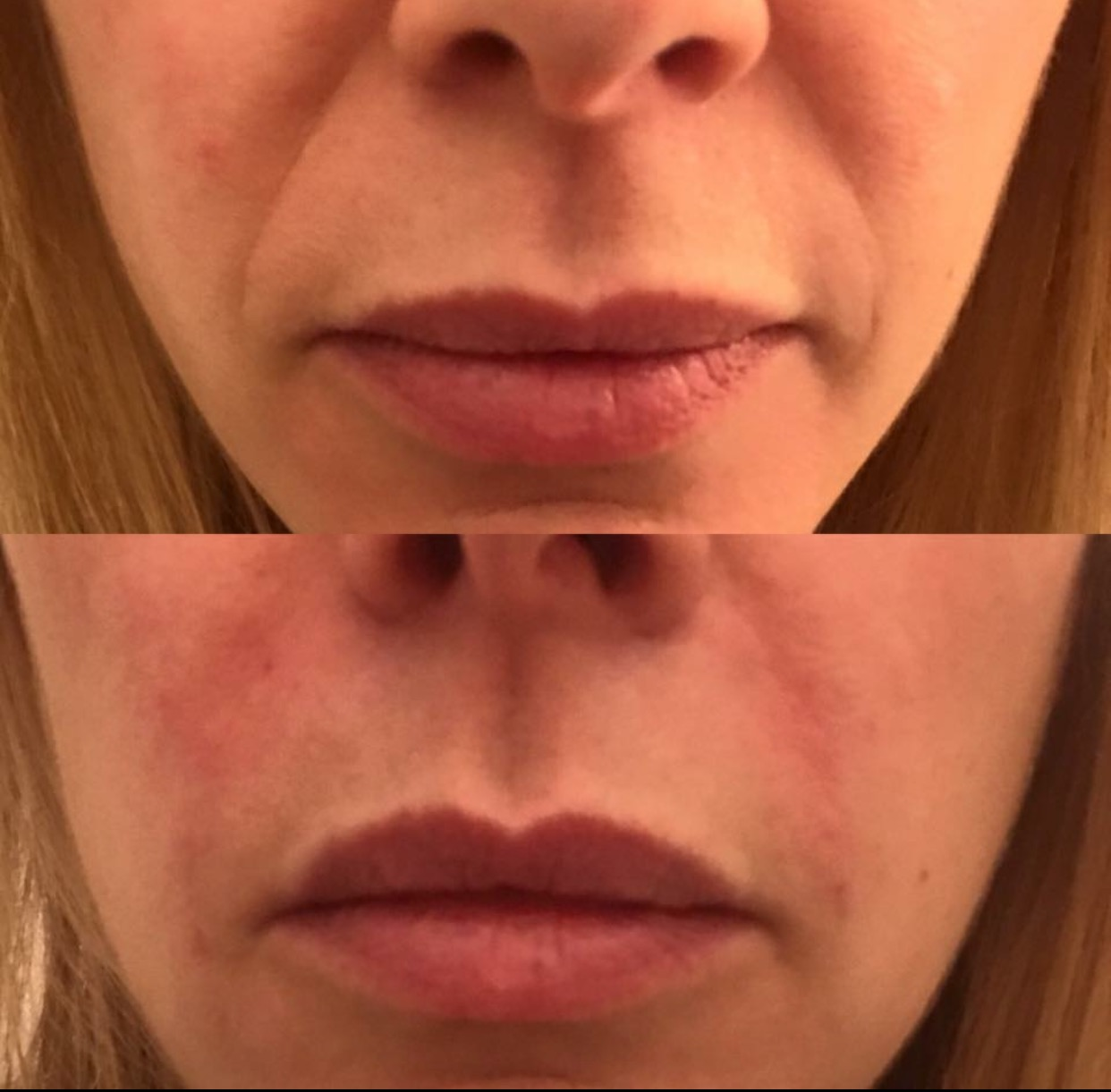 Before and after nasolabial folds 1.5ml Juvederm