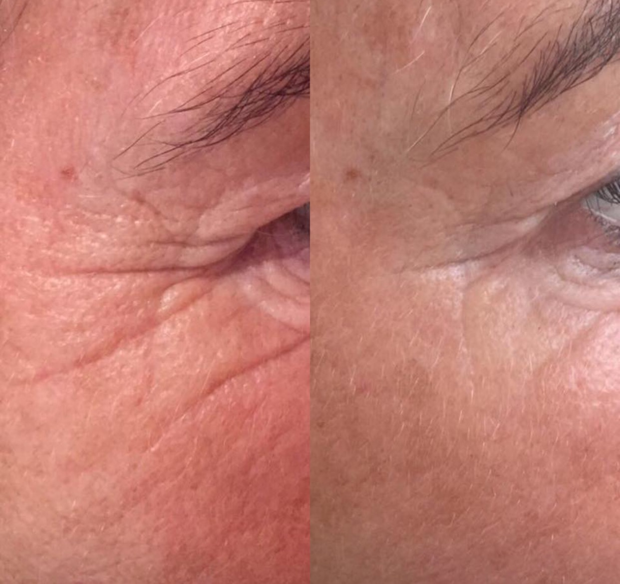 Anti-wrinkle injections to treat 'crows feet' around the eyes
