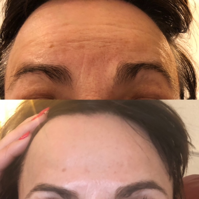 Anti-wrinkle injections- much smoother skin texture and nowrinkles