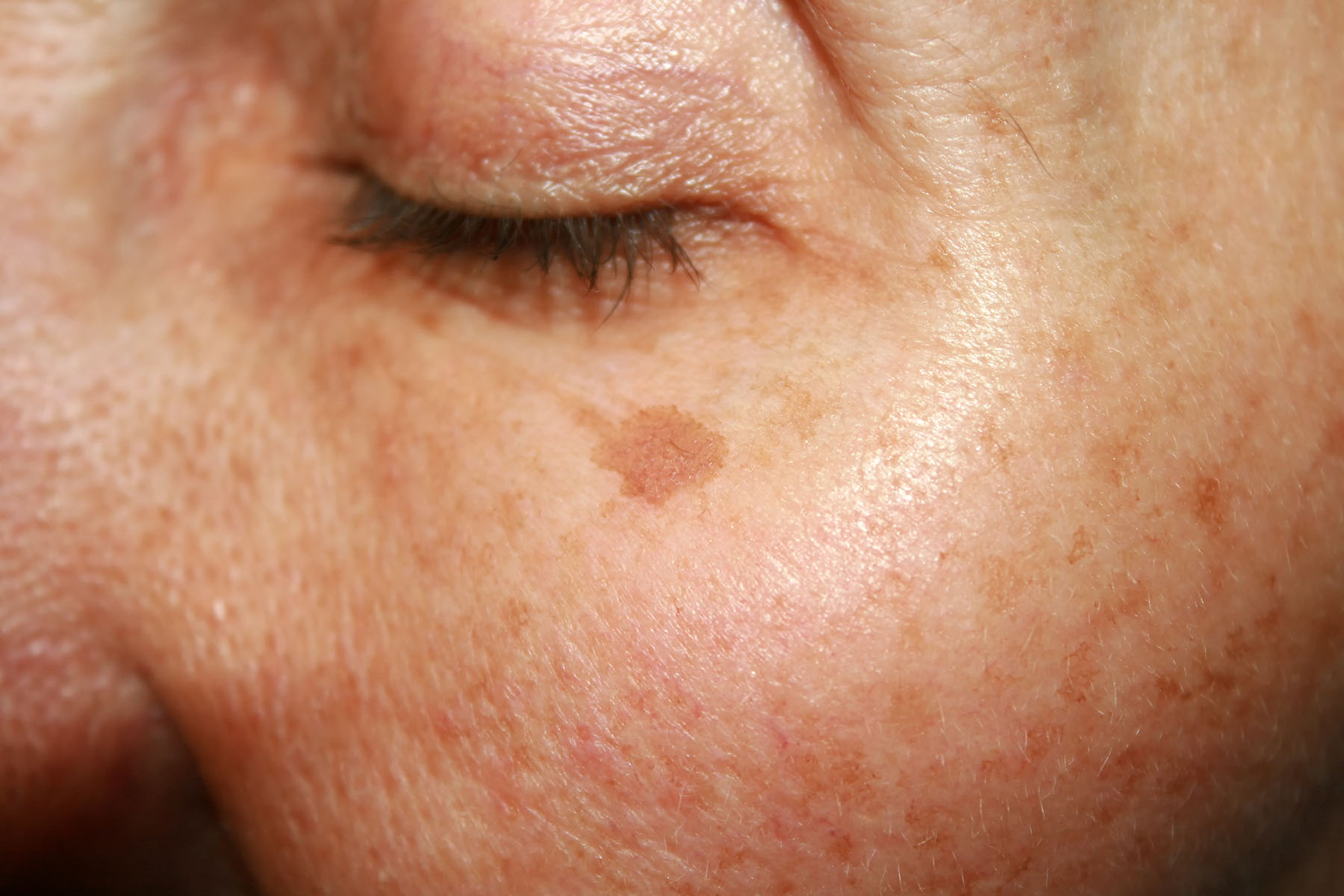 An example of what an age/sun/liver spot looks like on a face.