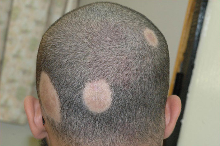 alopecia_scalpmicropigmentation.jpg