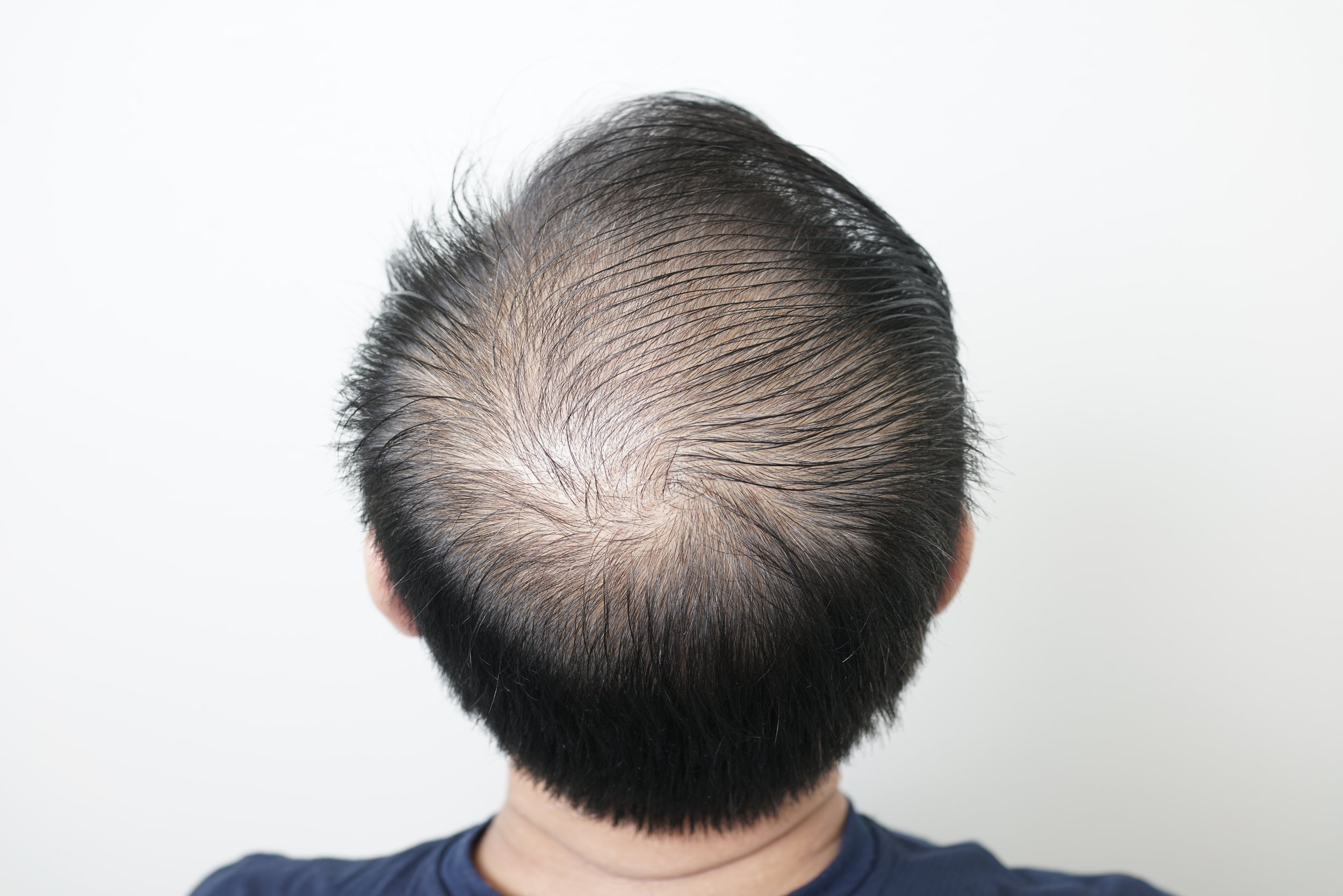 scalp-micropigmentation-hair-density2.JPG