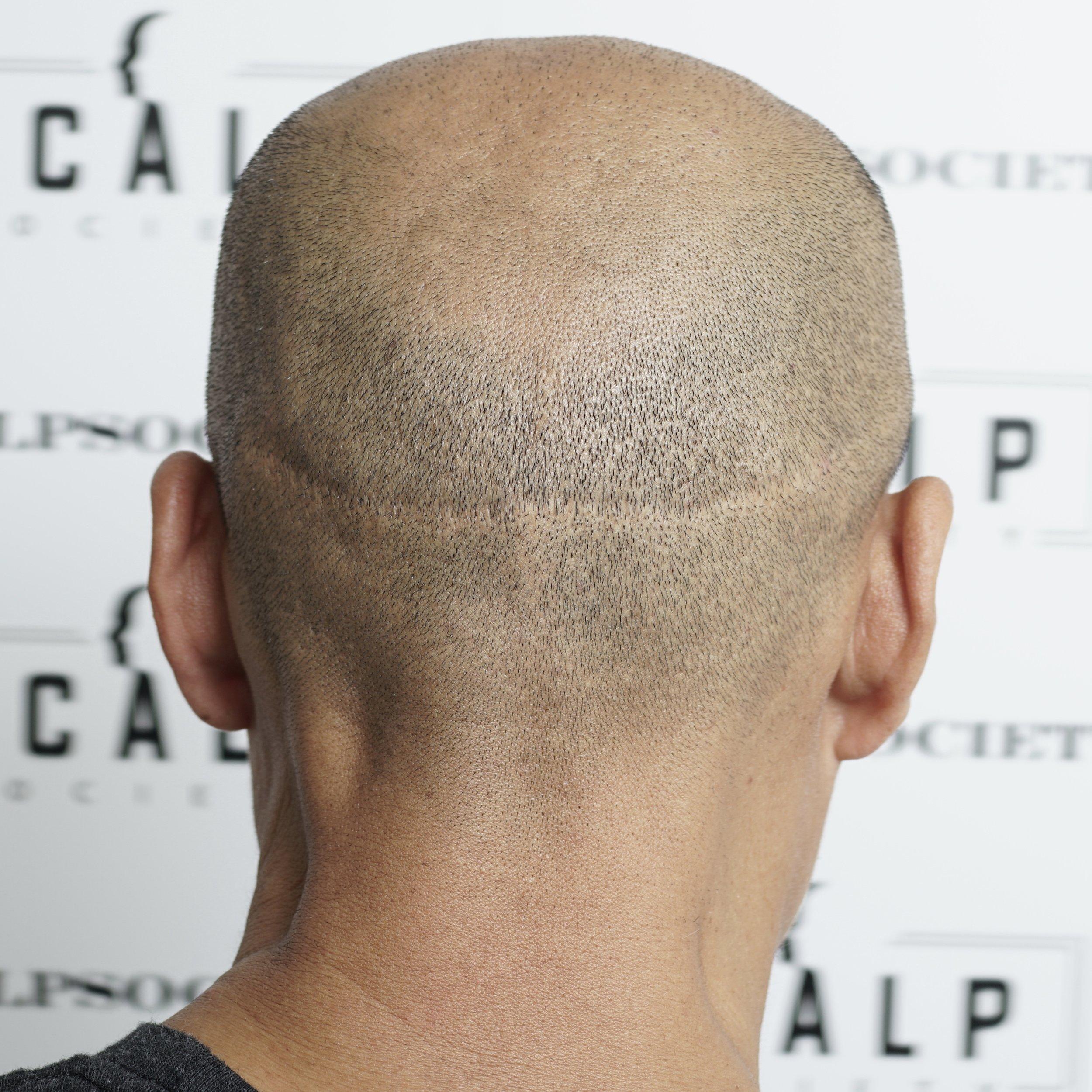 Fut-scar.jpg