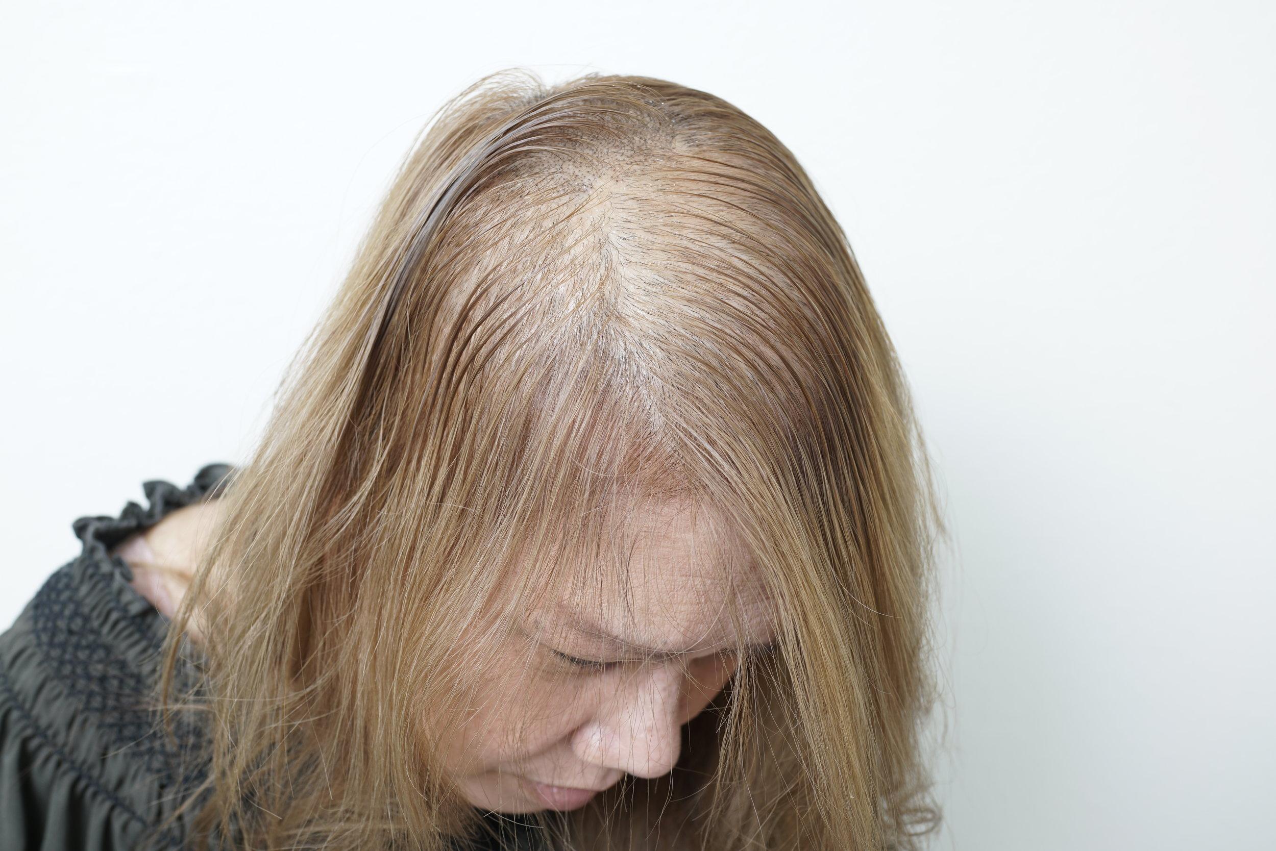 balding-woman.JPG