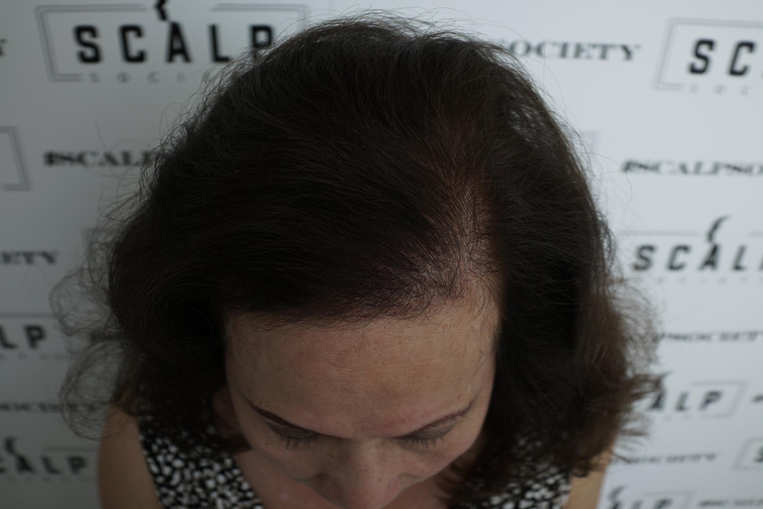 women-hair-density-after.JPG