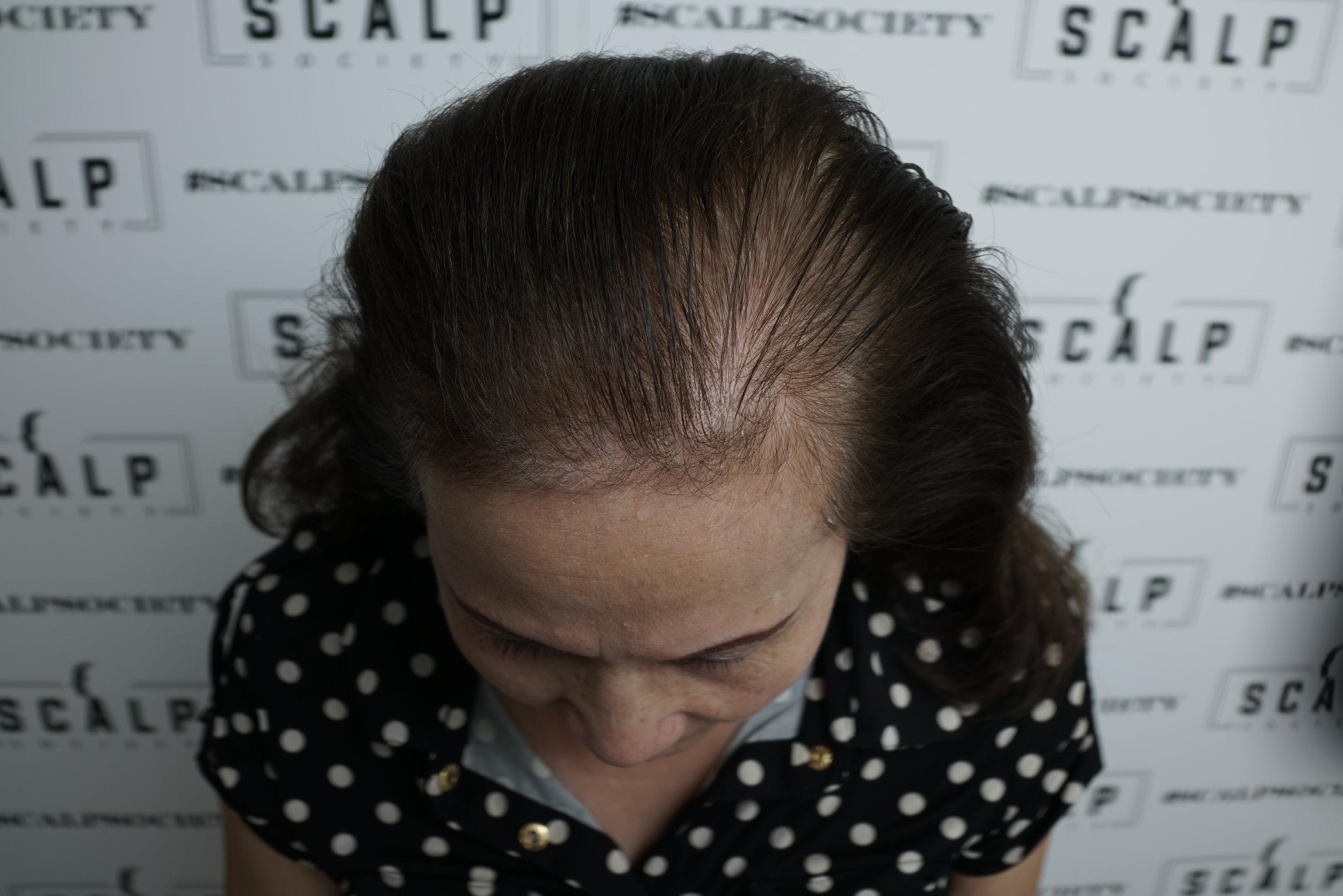women-hair-density.JPG