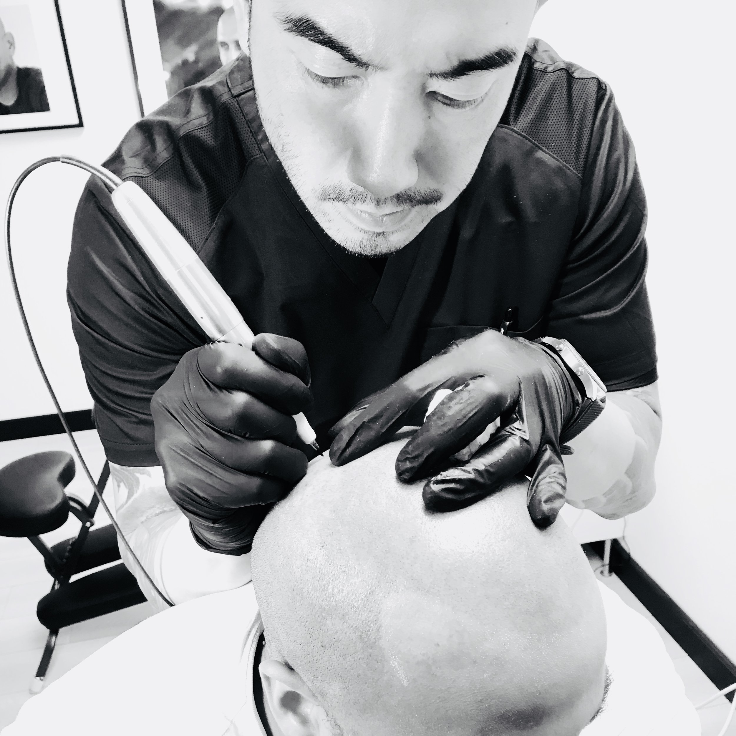 1st TreatmentWe will achieve total coverage for your hairline tattoo and give you an undertone that matches your skin.We will need to buzz down your head if needed in clinic. -