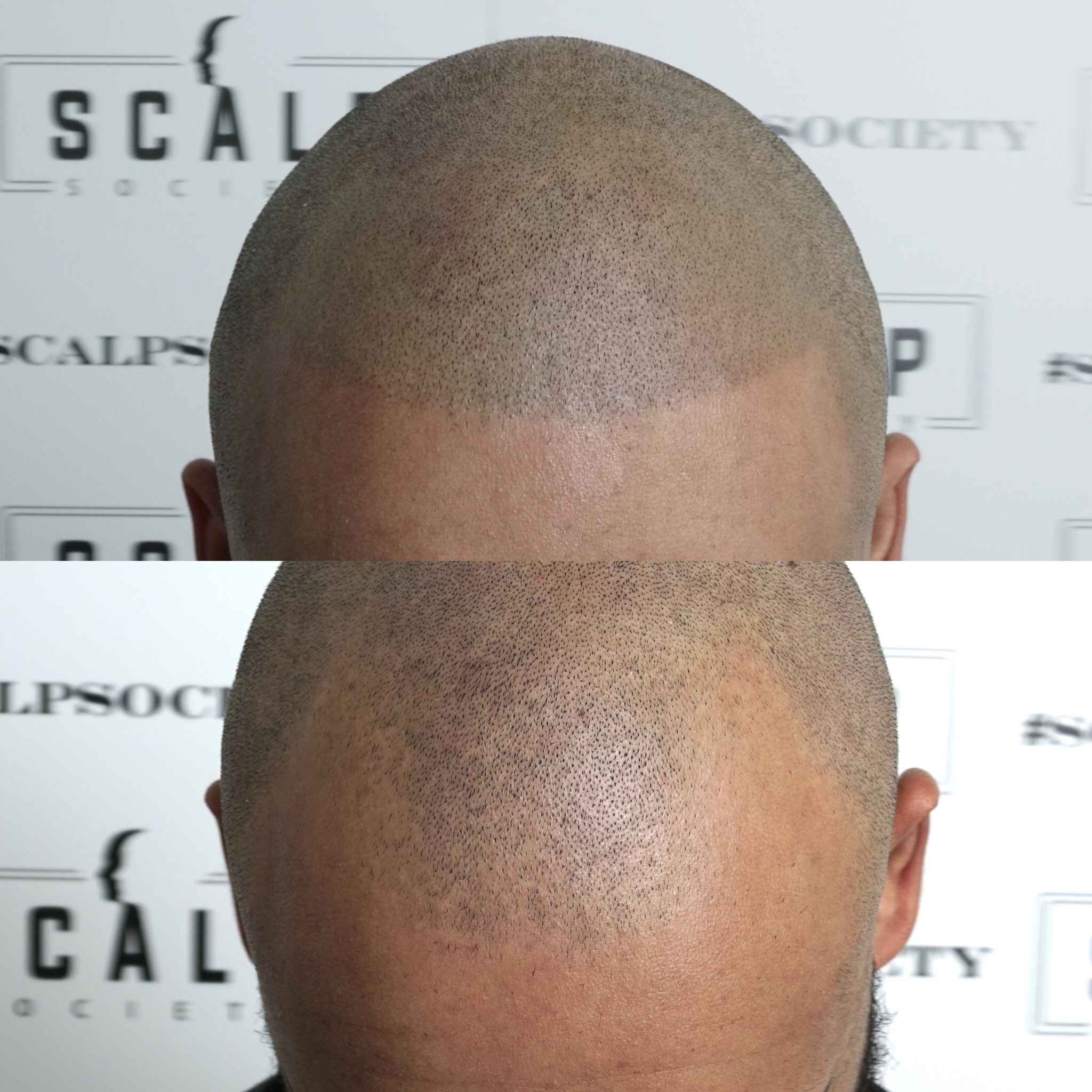 Male 33. Receding hairline, Norwood 2-3, scalp micropigmentation, to replicate hair follicles. Edged up barbershop line per client request.