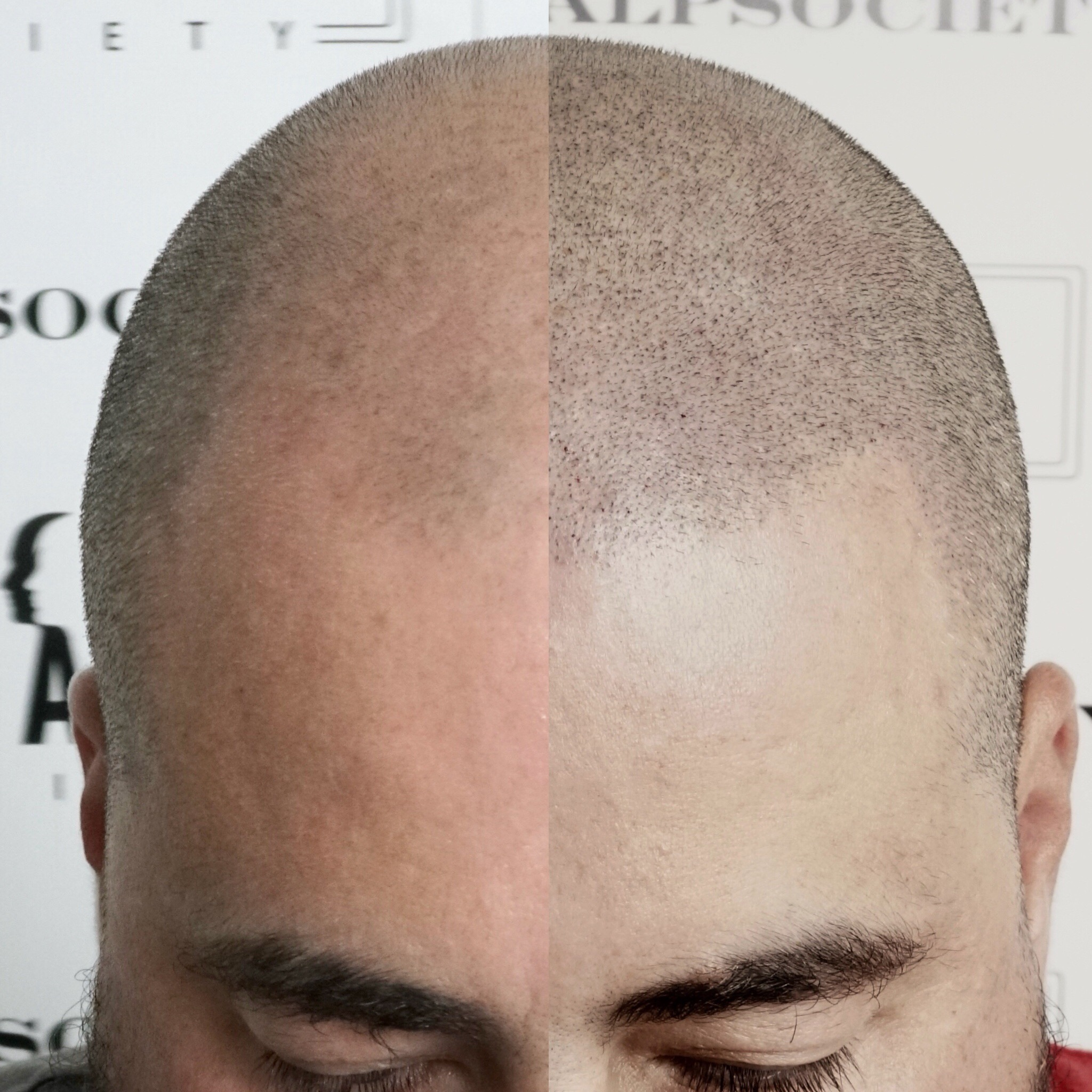 Male 28. Thinning and balding.Norwood 6-7, scalp micropigmentation performed and restructure hairline. He came in asking for a hair tattoo, another word for micropigmentation. Natural hair line per clients request.