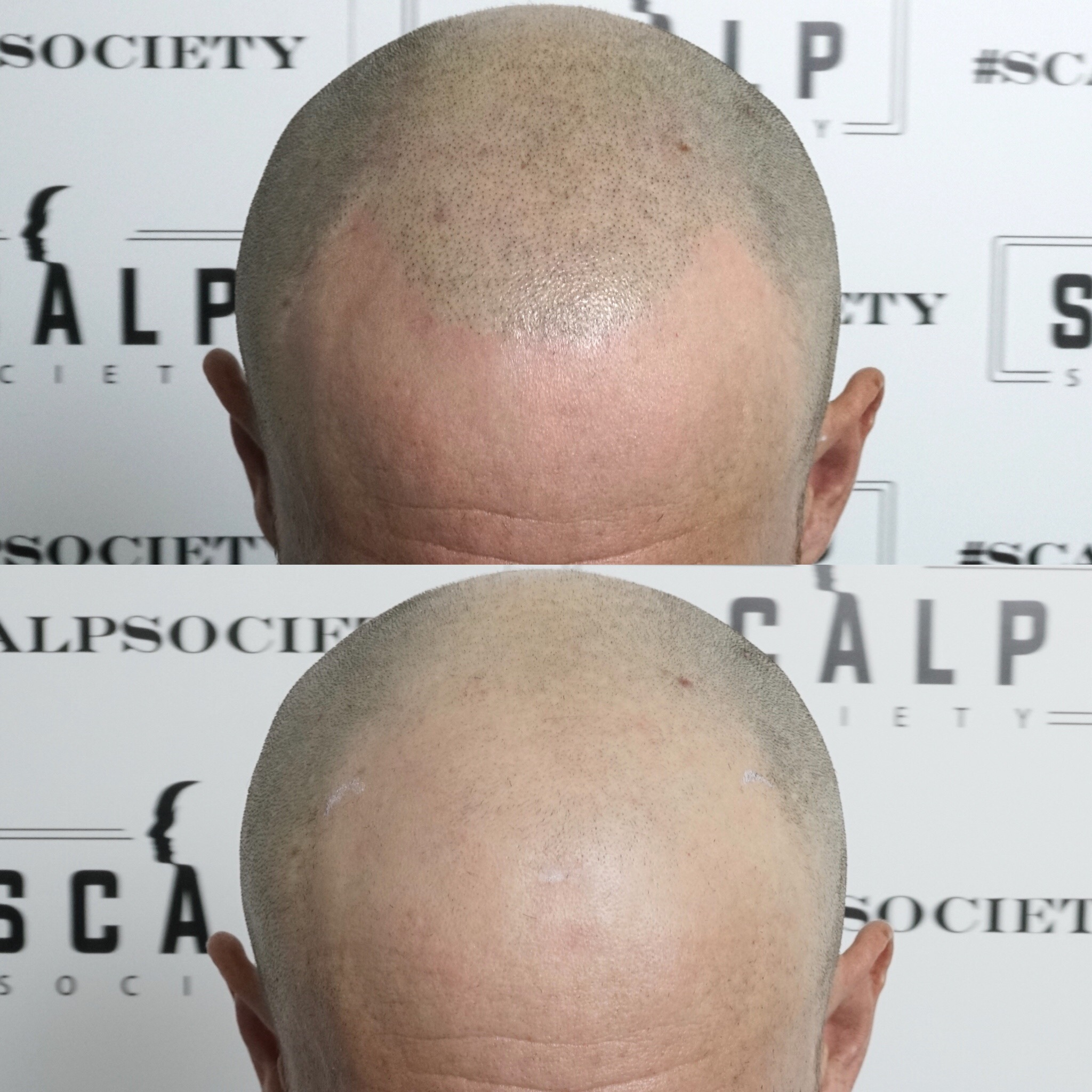 """""""Scalp micropigmentation exceeded my expectations. I now feel younger and more confident!""""  This client wanted the micropigmentation look more natural and asked that we make it look like it was thinning and receded."""
