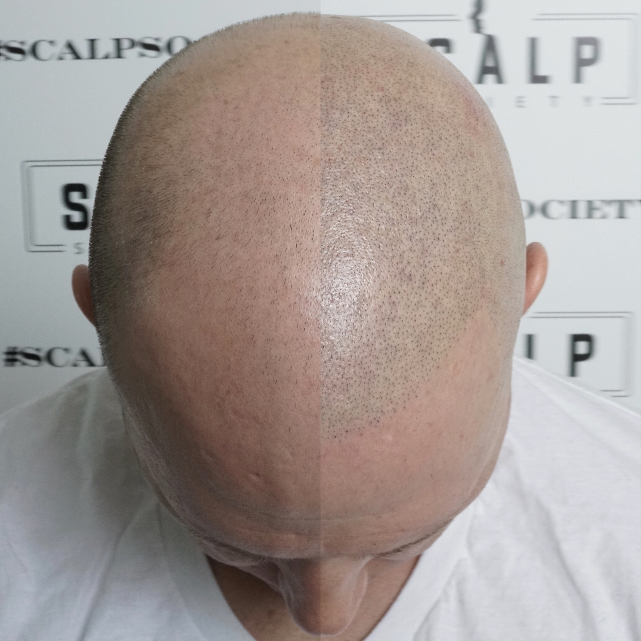 Male 30. Clients with lighter skin complexion can be more difficult because when their head is shaven it has a greenish - grey tone to the follicles. We had to carefully match the micropigmentation to the color of his follicles. Micropigmentation is for everyone, no matter the skin tone, we can match it perfectly.