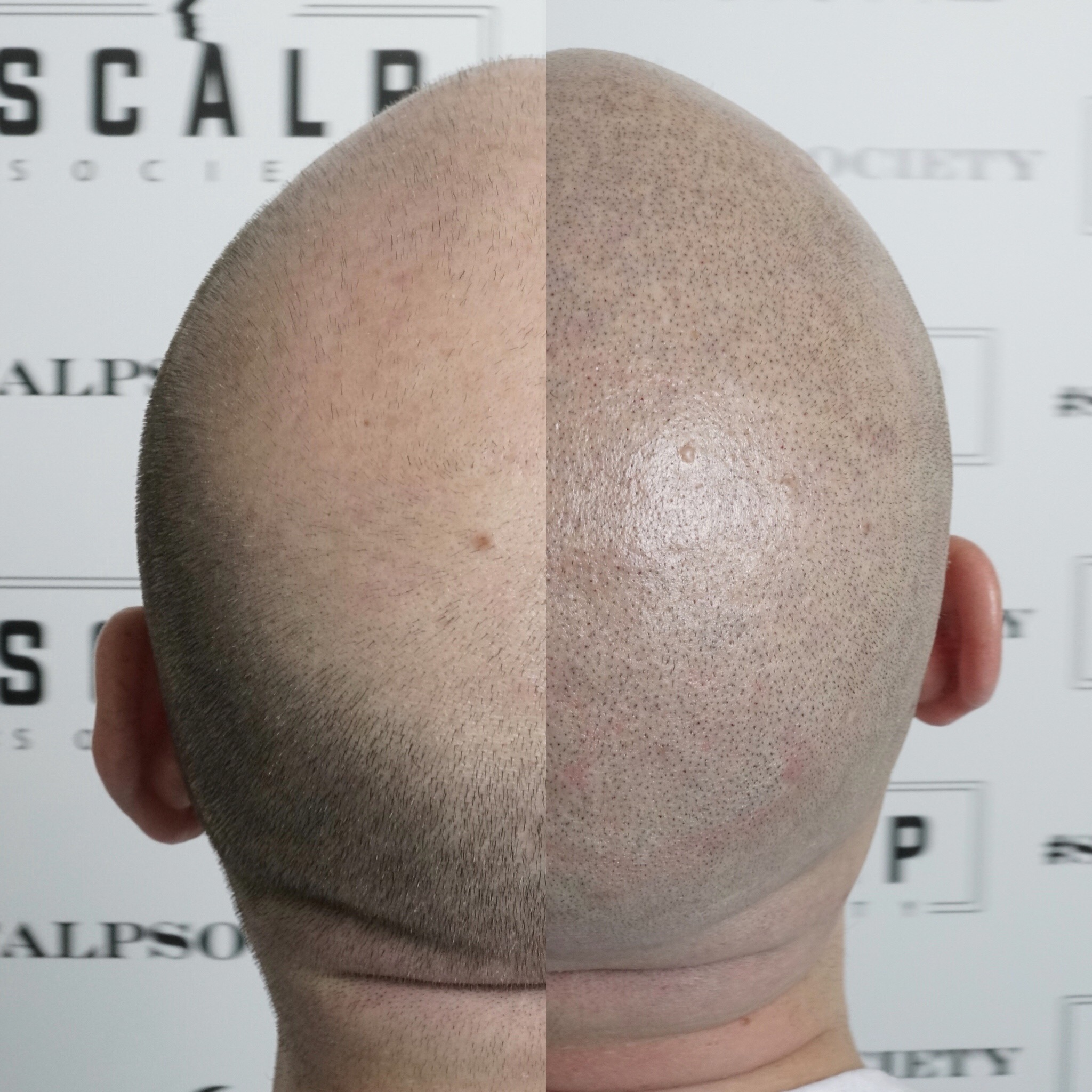 Male 31. Very common in male pattern baldness, clients see a ring on their crown. Micropigmentation replicates hair follicles and can help camouflage the ring with a blend and transition technique.
