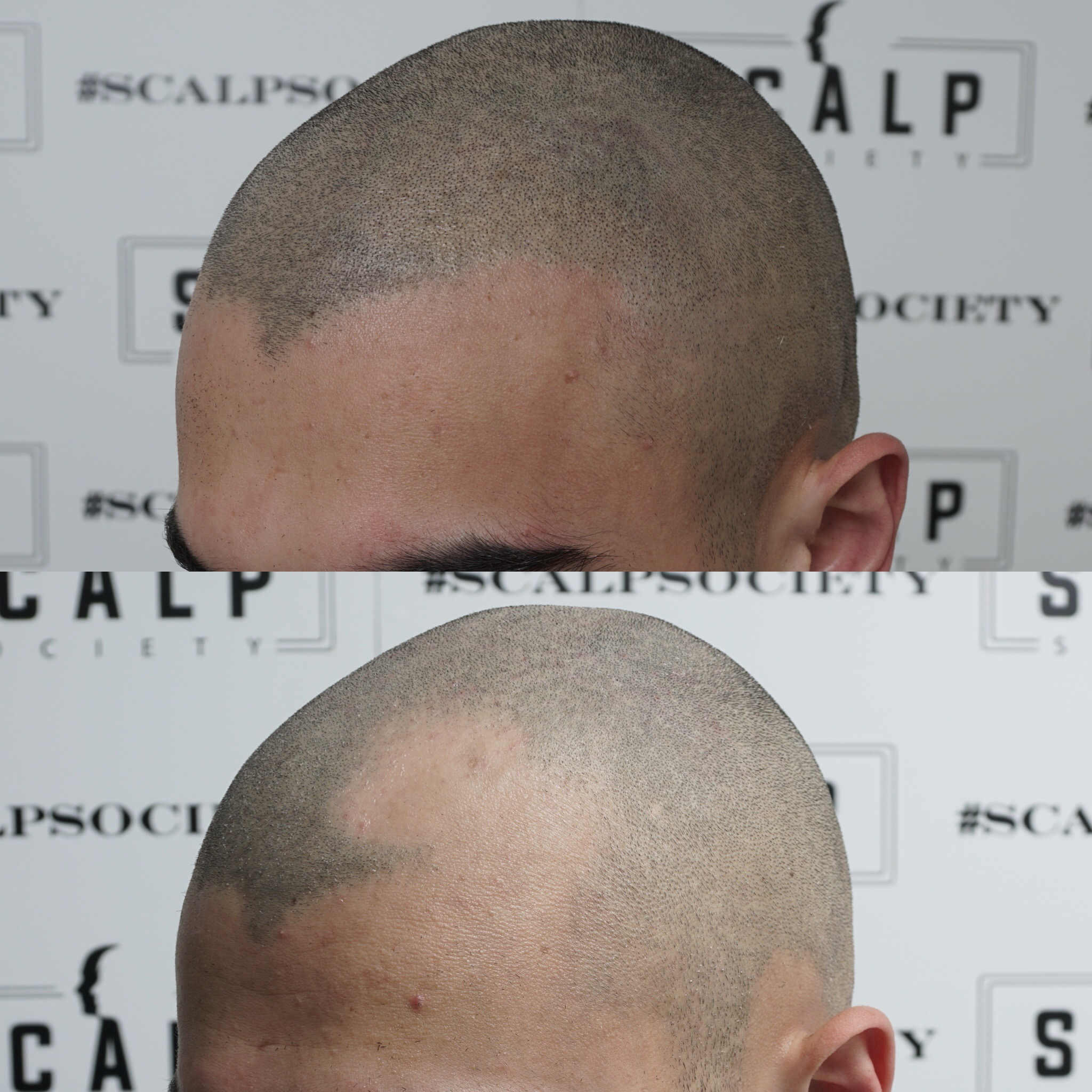Male 25. This client has Alopecia and came in looking to get micropigmentation done for the front and back. This is his second session of micropigmentation, even though it looks good, we will do a third to make it better.