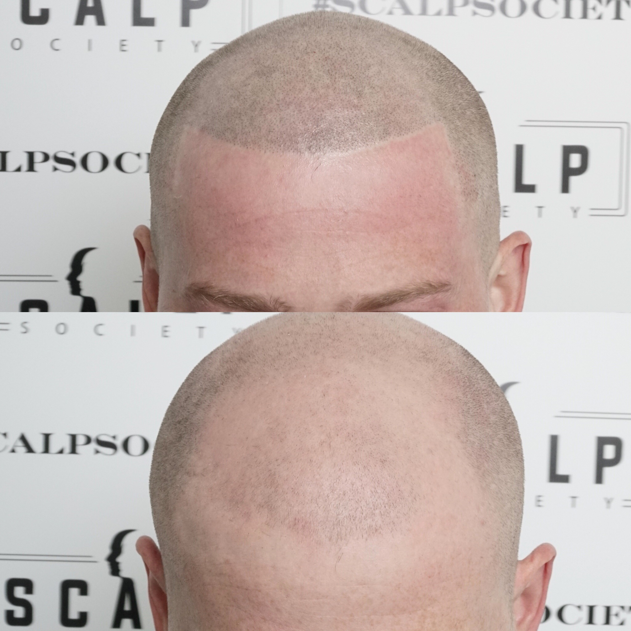 Male 29. Had a receding hairline and loss hair all the way to Norwood 7. Barbershop edged up line per clients request. Our lines are clean, straight and precise. Micropigmentation is an art and skill that is perfected through time and practice.