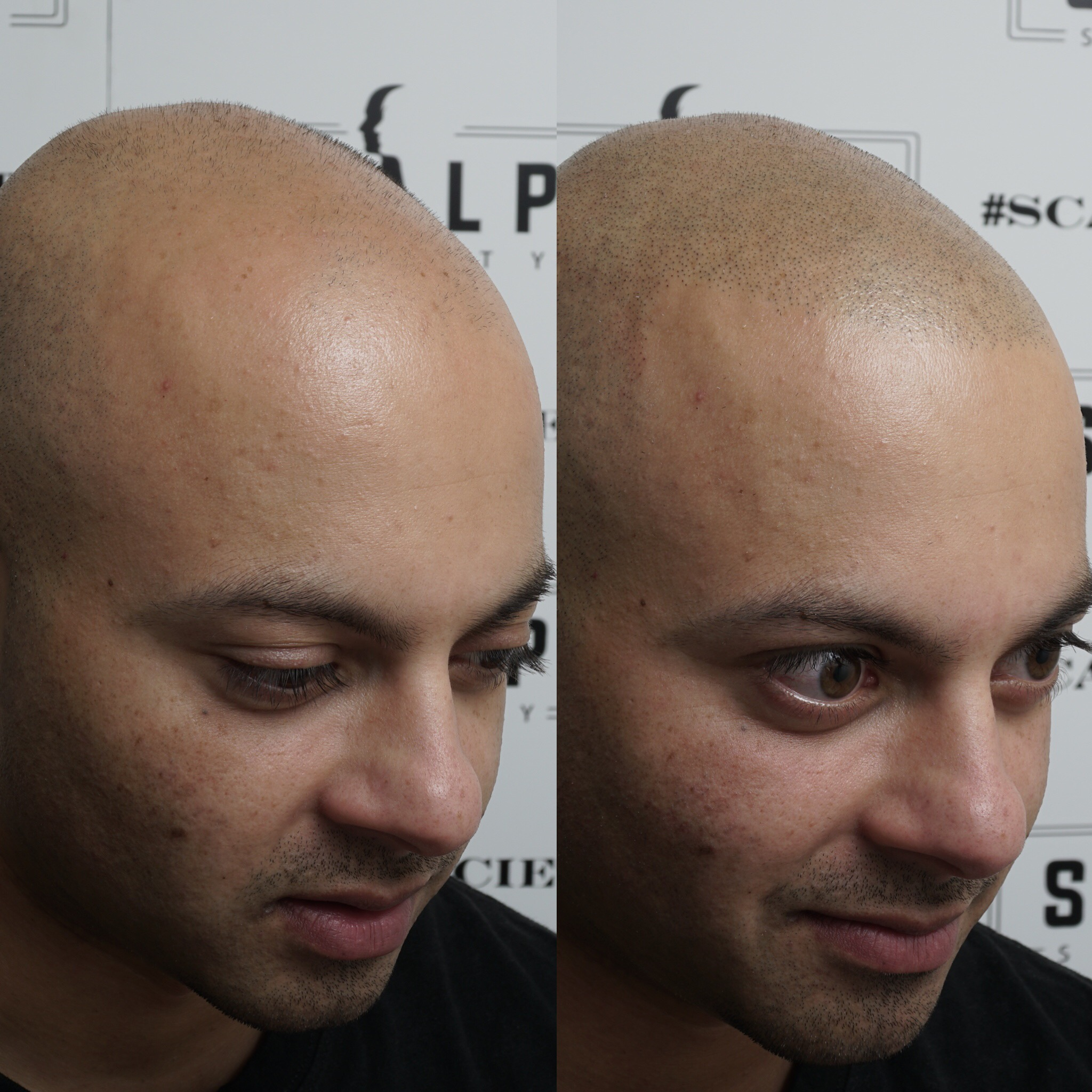 Micropigmentation does wonders for a persons age, confidence and looks. This is a perfect example that it shaves off years!