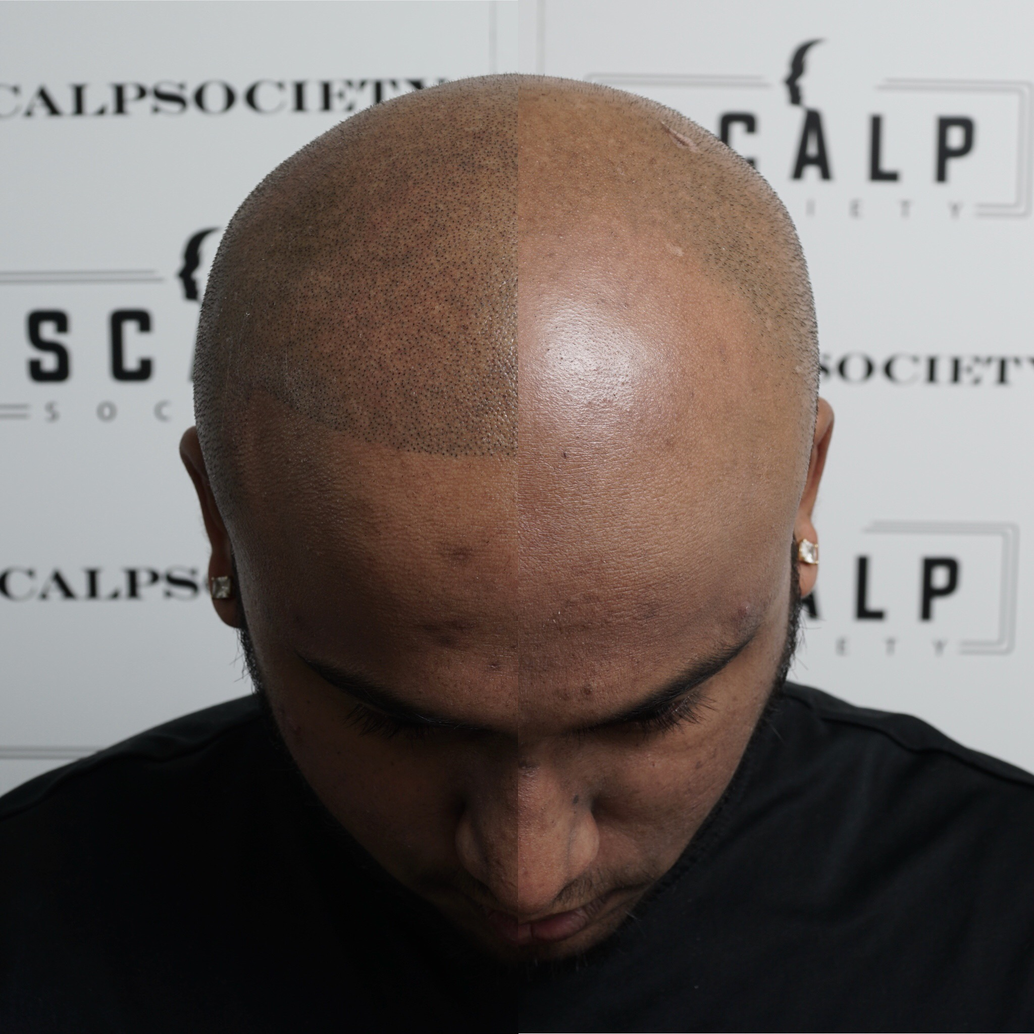 This was achieved after the first micropigmentation session. Micropigmentation is a two step process, the first session will fade 20-30% because we try and get the undertone color. The 2nd session will be slightly darker to get the follicle look.