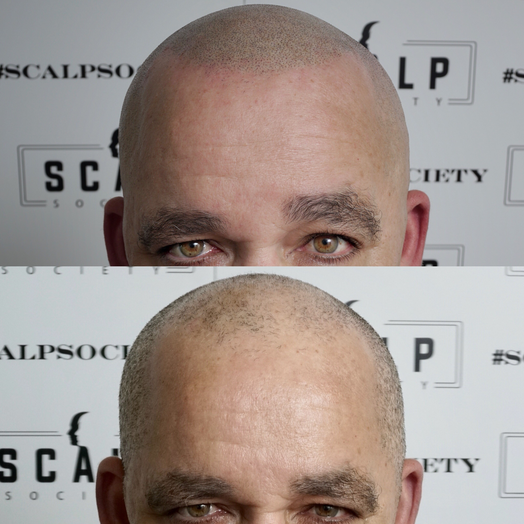 Male 62.Micropigmentation is for all ages. We specialize in making your hairline look as natural as possible.