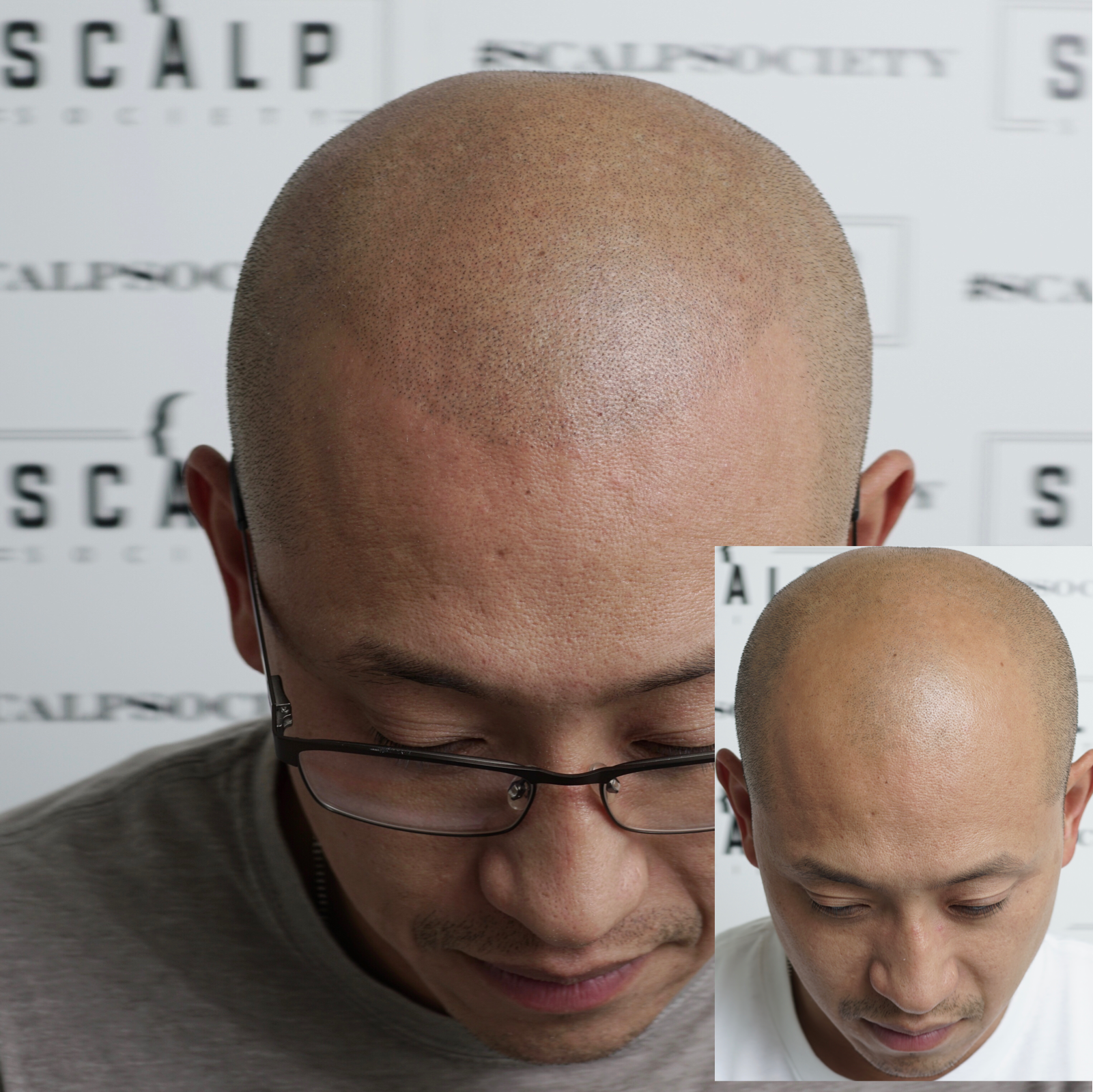 Male 35. Natural scalp micropigmentation hairline. Naturally receding to make it more age appropriate.