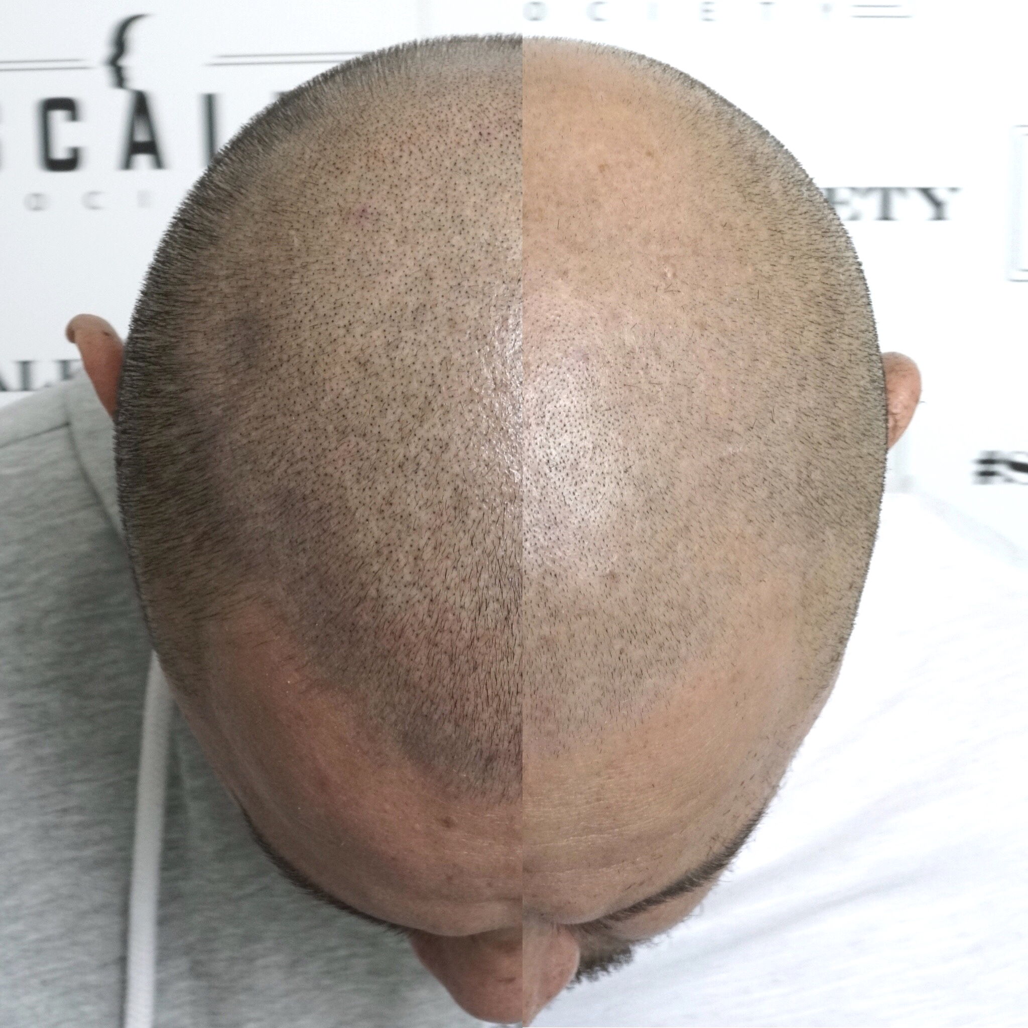Male 30. This density was achieved after the first session! Micropigment is guaranteed to make difference. Unlike invasive hair transplants that are more expensive and not guaranteed to work.