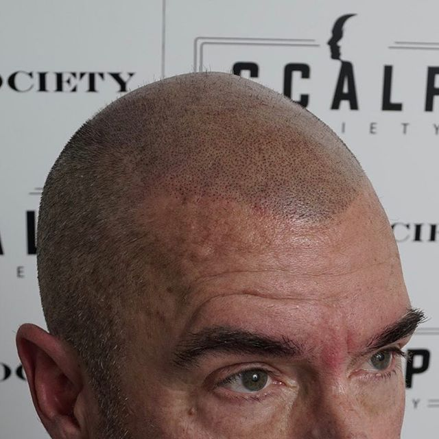 Look 10 years younger with scalp micropigmentation! | contact us for a free consultation 888.826.0098