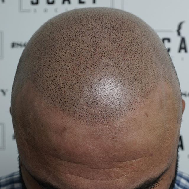 A age appropriate hairline to bring this client back into his late 30s.