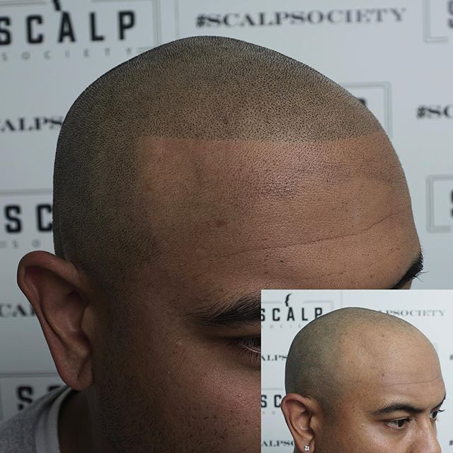 One of the types of hairlines we offer here at scalp society | barbershop edge up design