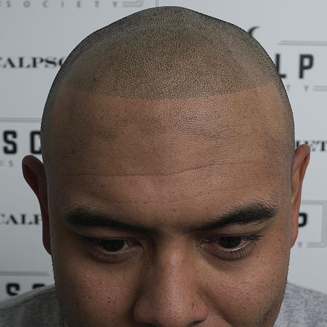 Take control of your hair loss with scalp micropigmentation