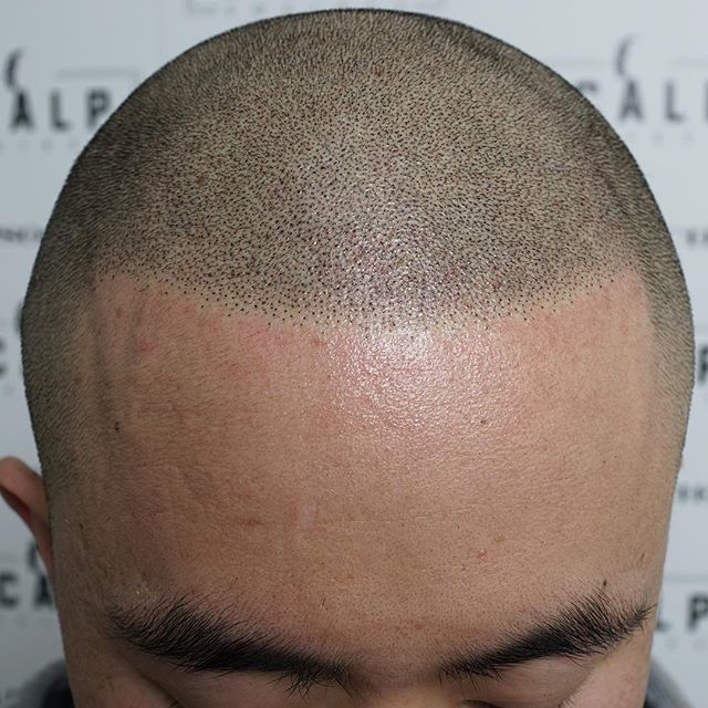 Strengthen your hairline with Scalp Micropigmentation
