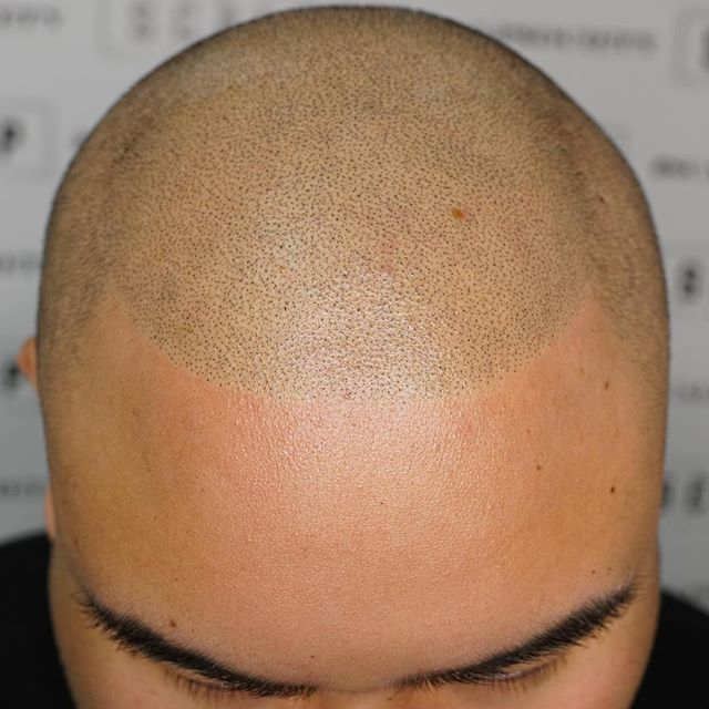 Boost your confidence with scalp micropigmentation