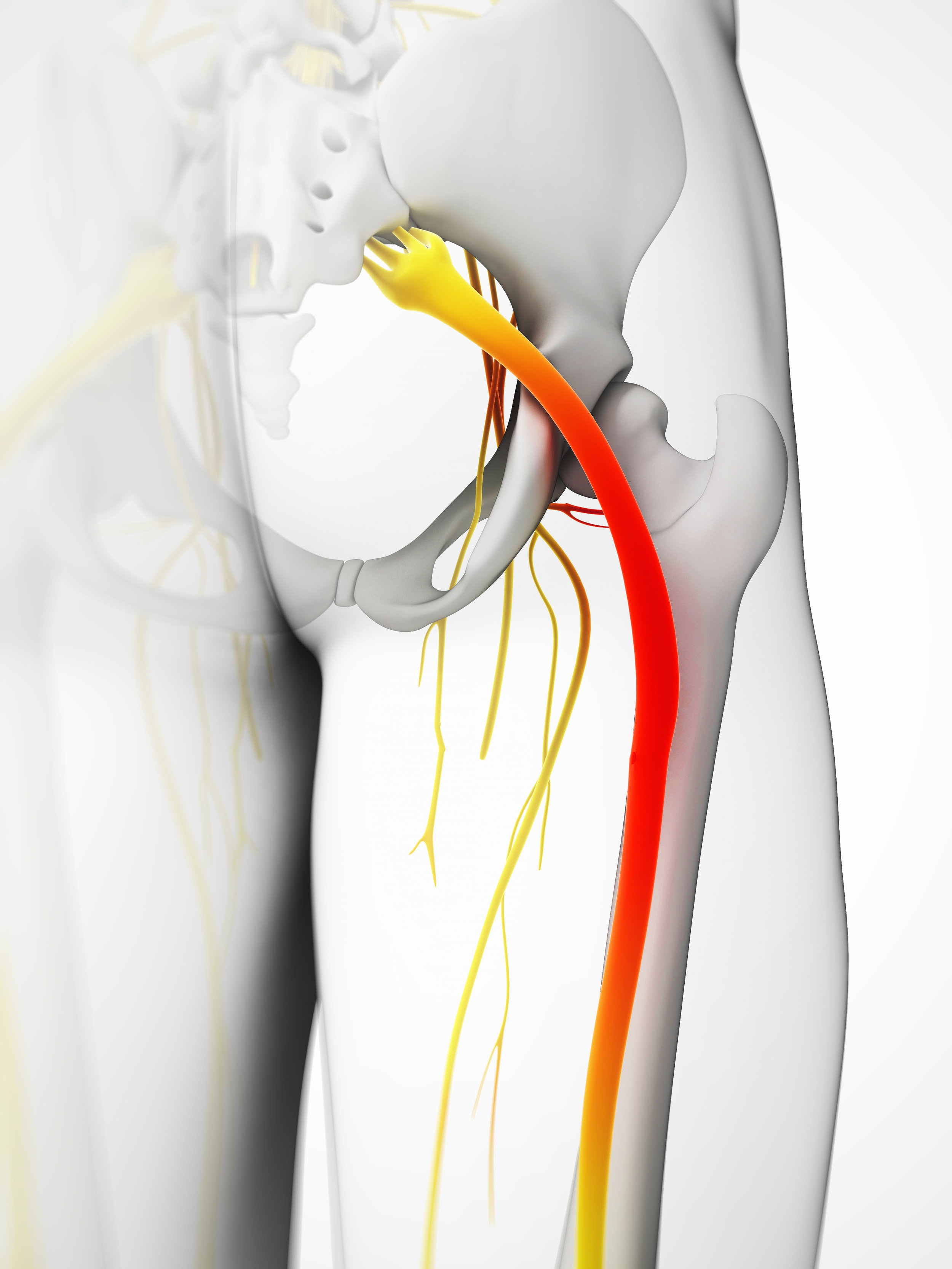 Sciatic nerve pain is extremely intense, and can include: numbness, tingling, pins and needles, weakness, loss of sensation, or any combination of these symptoms. -