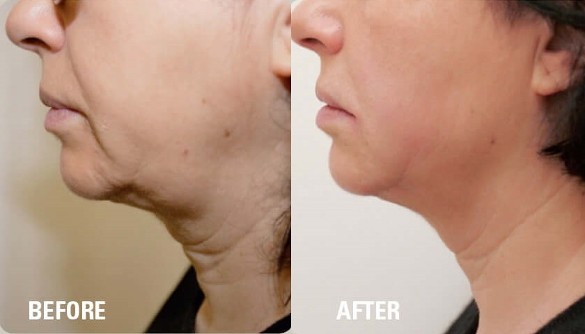 Ultraformer HIFU Before & After Neck.jpg