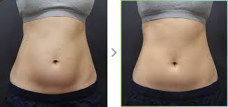Scizer HIFU Fat Loss Inch Loss Post Pregnancy Tummy.jpg