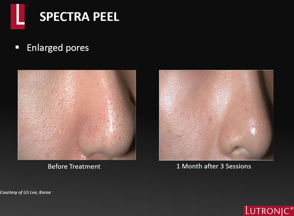 Spectra XT Before & AFter Pores.JPG