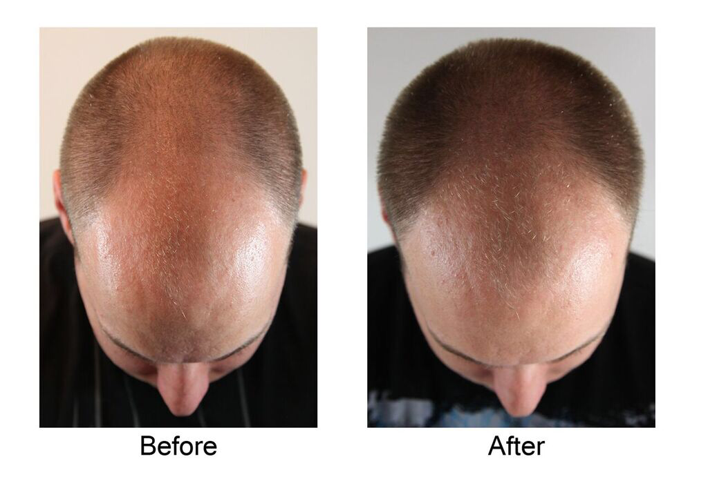 AQ Solutions hair completx Before & After.png