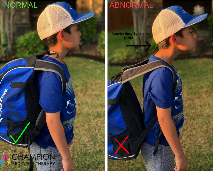 Backpack1.png