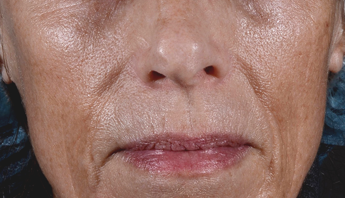Remarkable improvement in sun spots with laser resurfacing at La Therapie spa