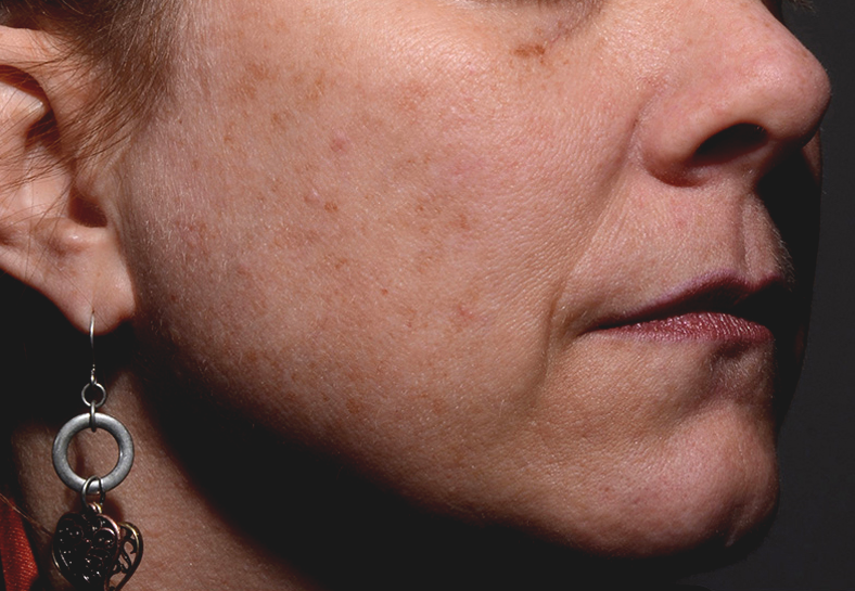 Reduce aging and sun damage at La Therapie spa