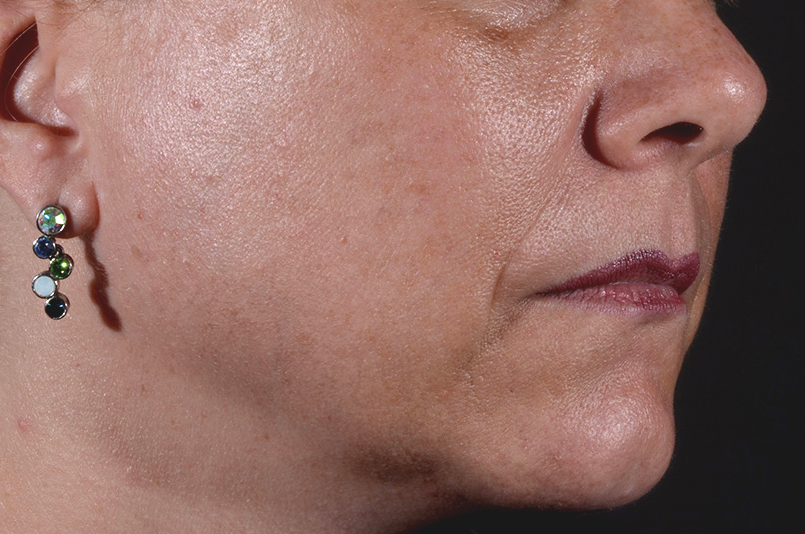 Minimize sun damage and age spots with IPL at La Therapie